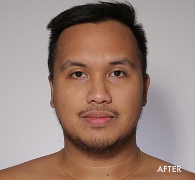 Jon After