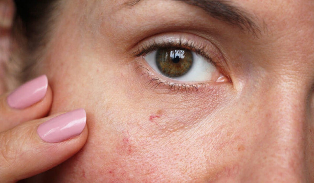 How To Prevent And Remove Spider Veins | Blog | HUDA BEAUTY